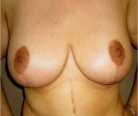 Manhattan Breast Reduction after 2